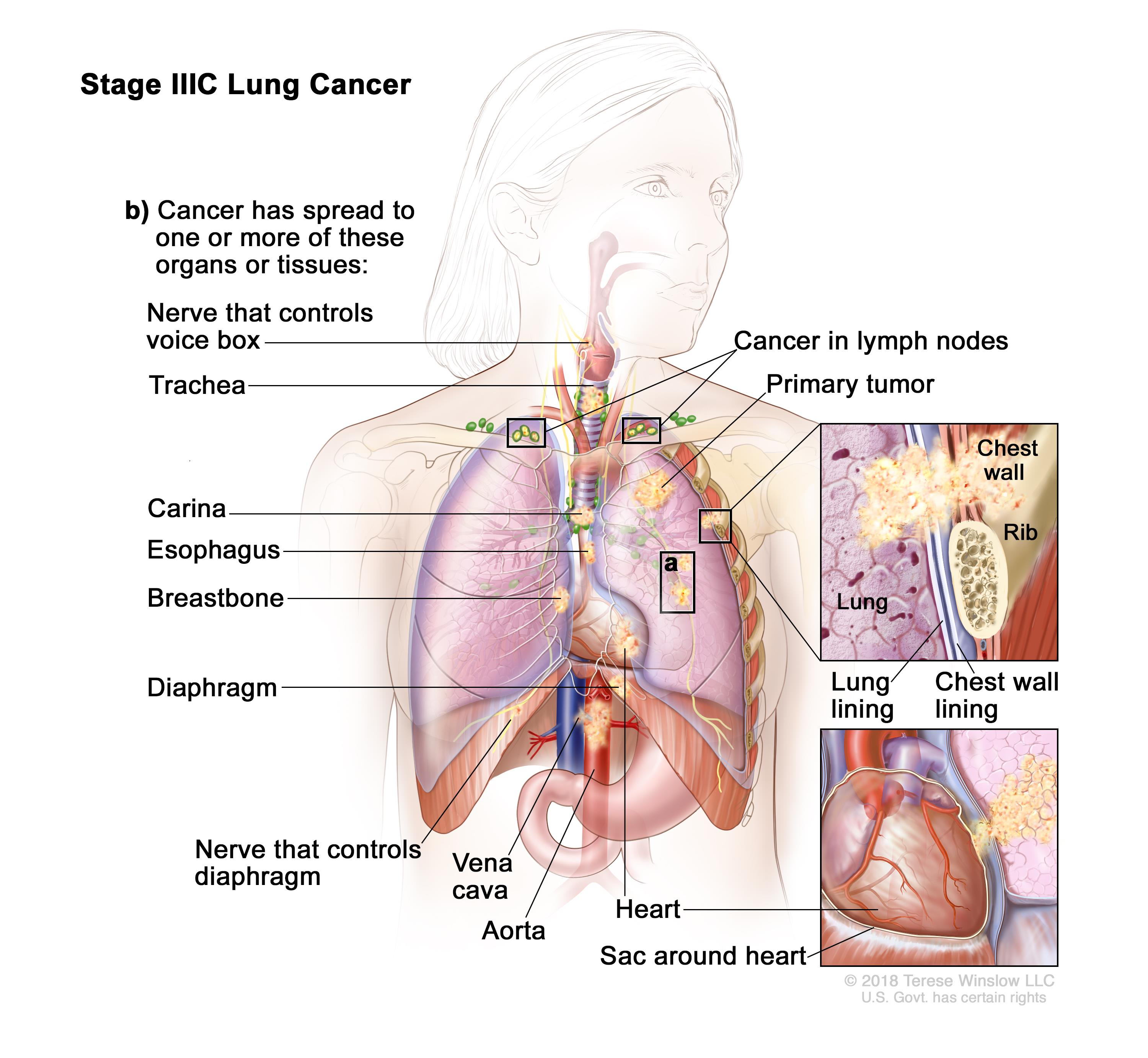 Non-Small Cell Lung Cancer Treatment (PDQ®)–Patient Version