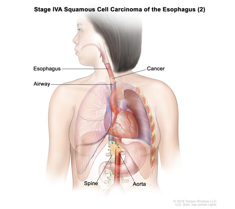 Stage IVA squamous cell cancer of the esophagus (2); drawing shows cancer in the esophagus, airway, aorta, and spine.
