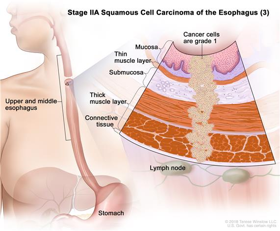 Stage IIA squamous cell carcinoma of the esophagus (3); drawing shows the upper and middle parts of the esophagus and the stomach. An inset shows grade 1 cancer cells in the mucosa layer, thin muscle layer, submucosa layer, thick muscle layer, and connective tissue layer of the upper and middle esophagus wall. The lymph nodes are also shown.