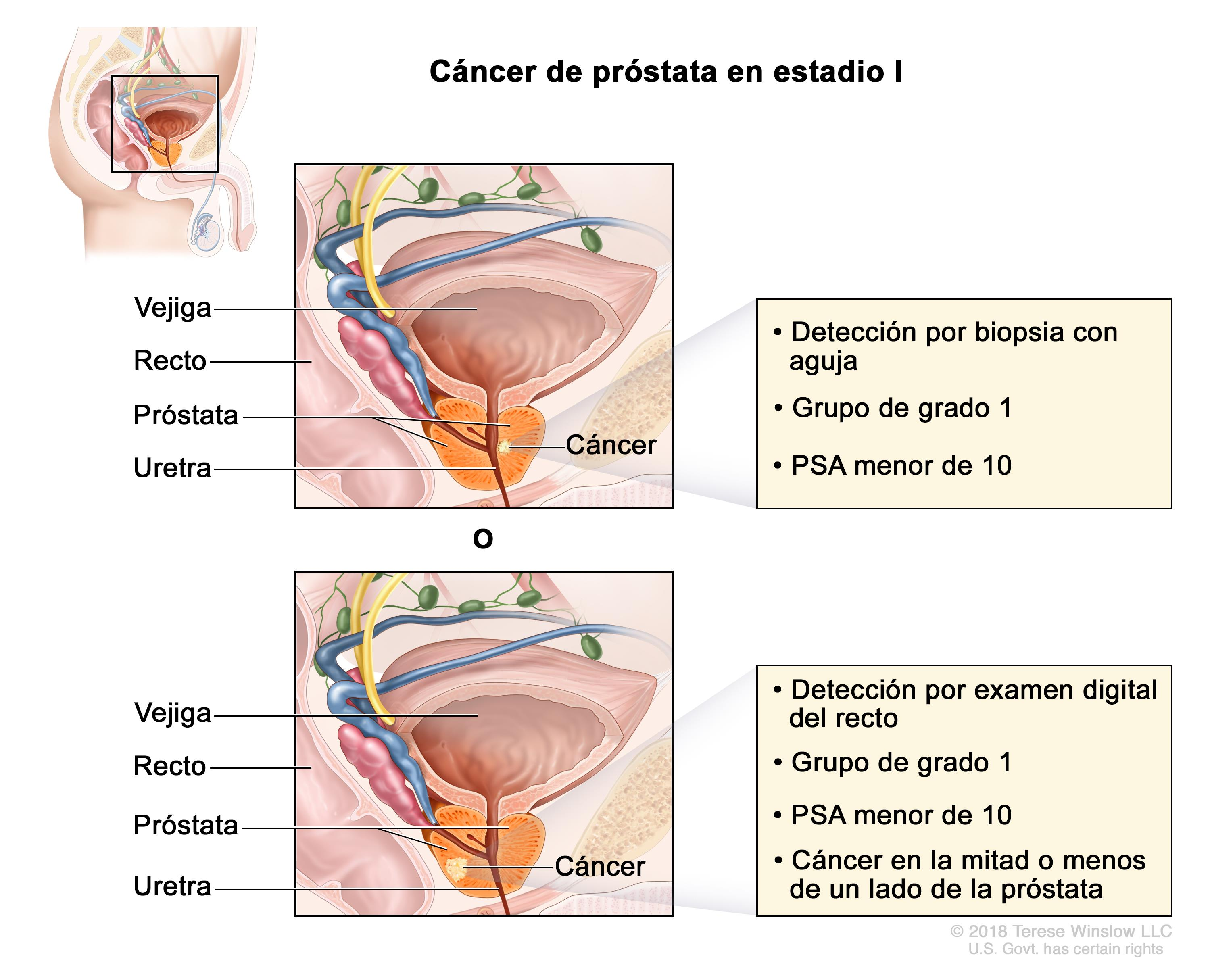 Adenocarcinoma de próstata incidental