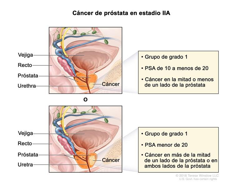 cancer prostata nivel 5