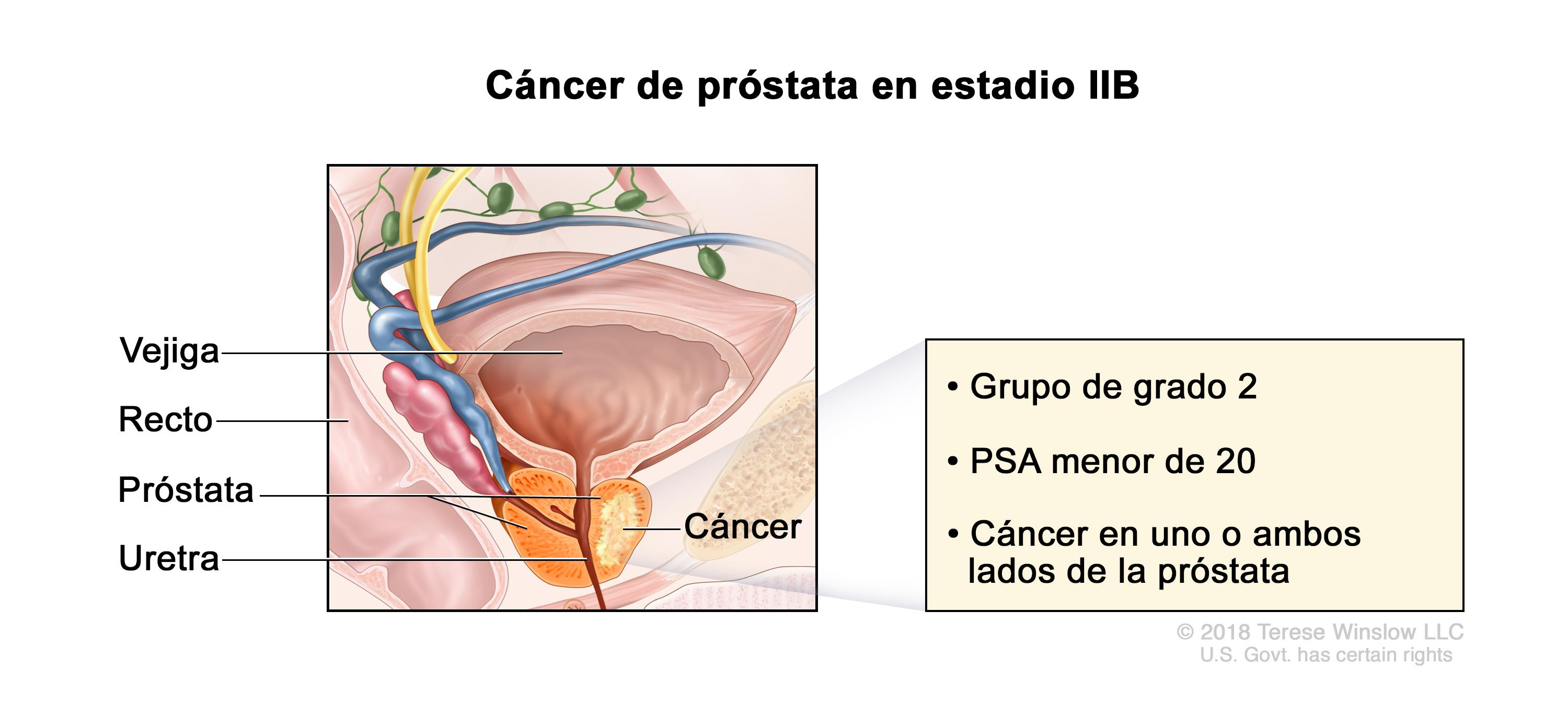 grado 4 cancer de prostata