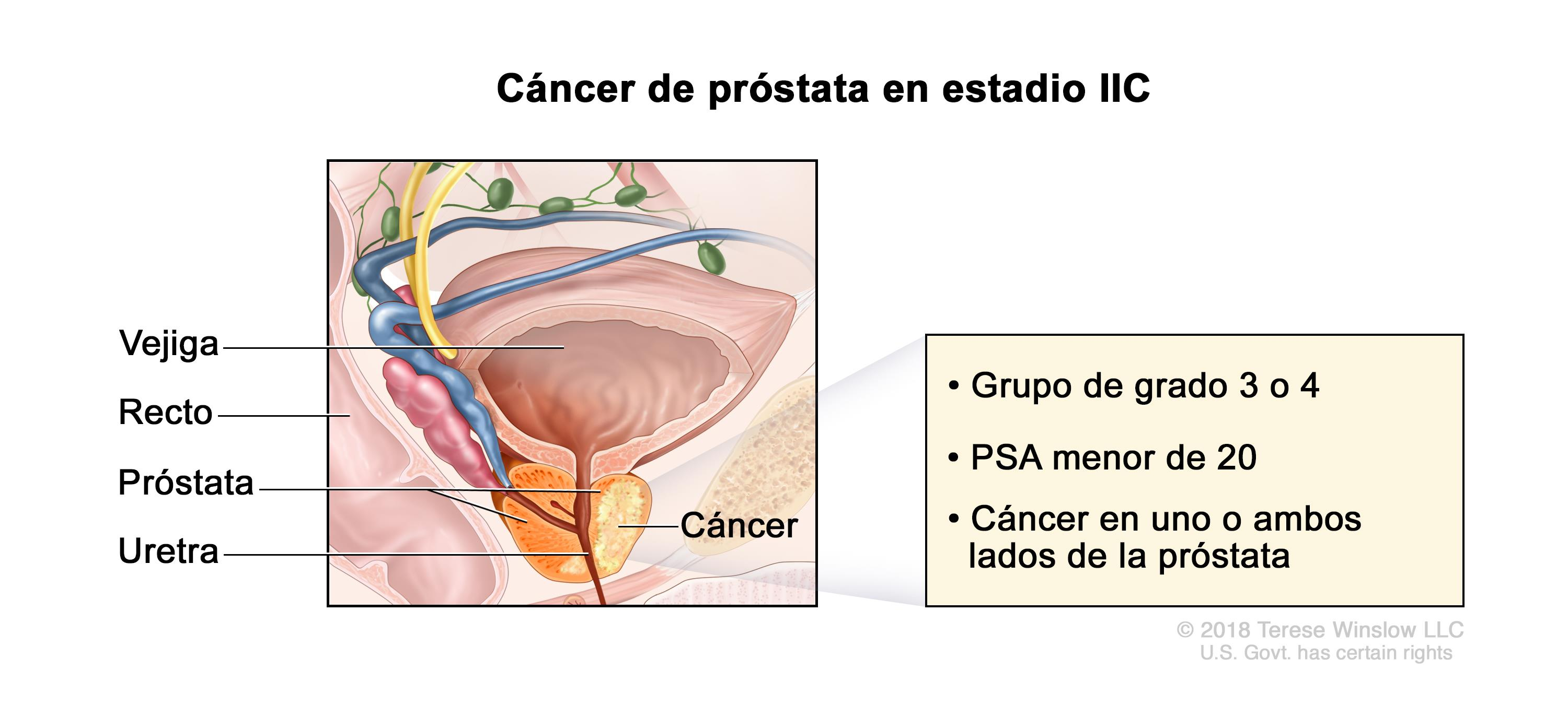 cancer prostata metastasis sintomas