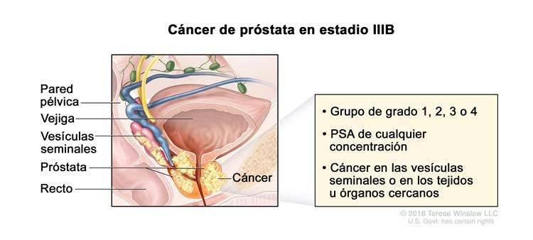 cancer de prostata grupo 4
