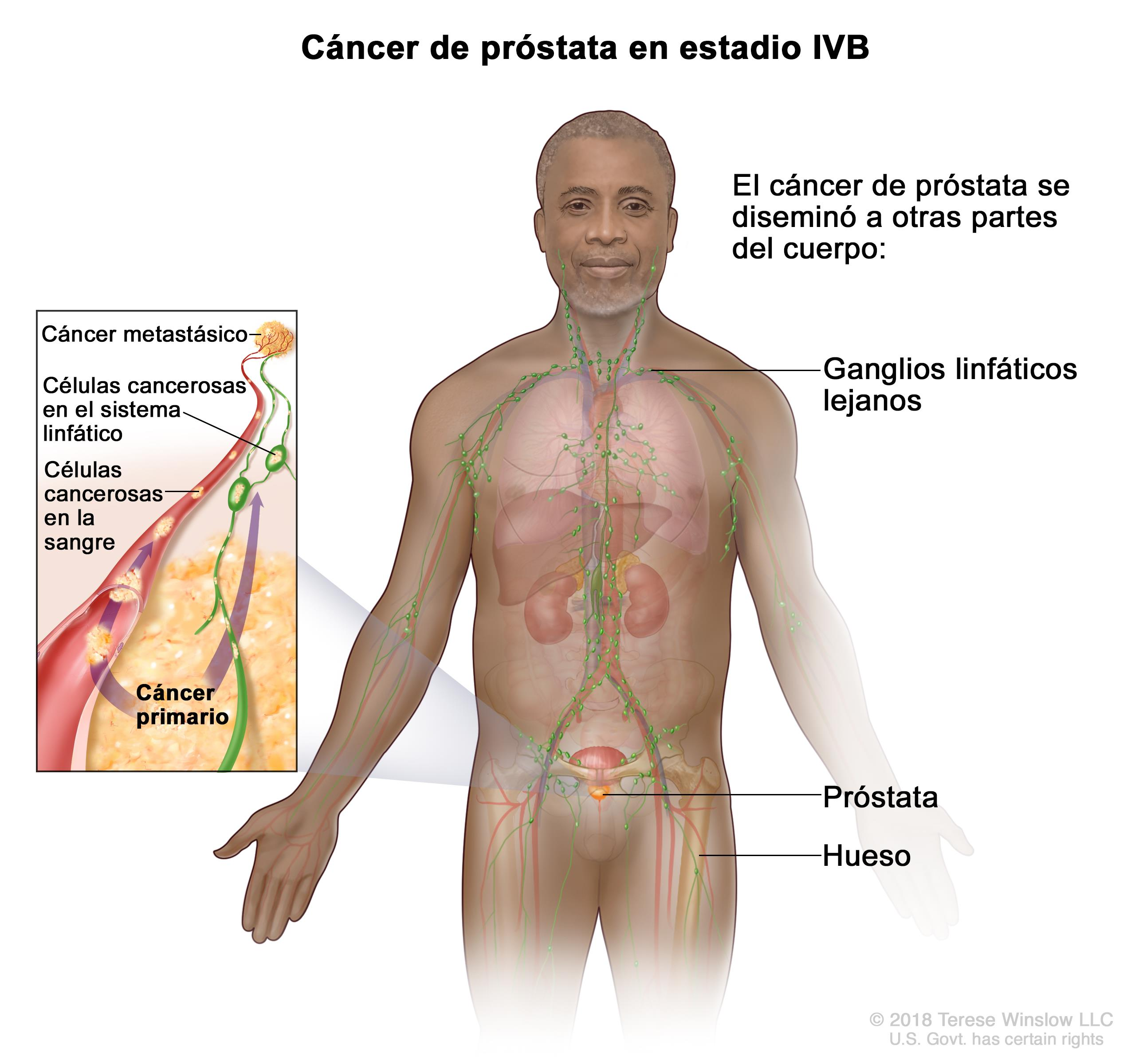 cancer de prostata fase 9