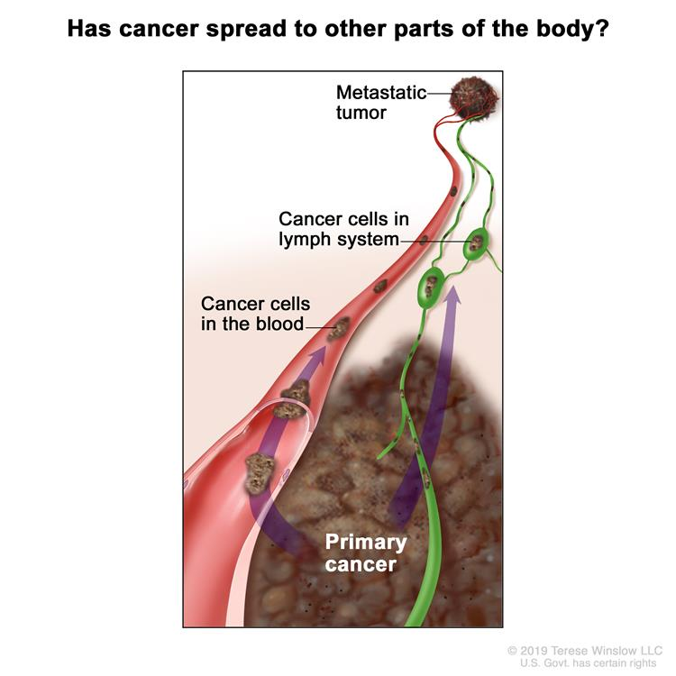 Melanoma staging (cancer spread to other parts of the body); drawing shows cancer cells spreading from the primary cancer, through the blood and lymph system, to another part of the body where a metastatic tumor has formed.