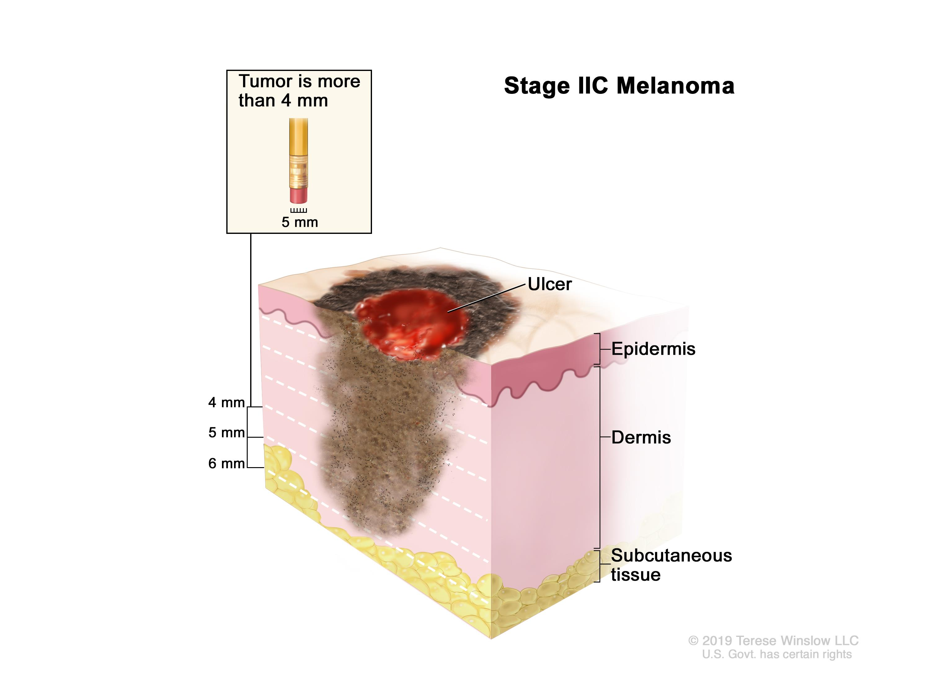 Stage IIC melanoma; drawing shows a tumor that is more than 4 millimeters thick, with ulceration (a break in the skin). Also shown are the epidermis (outer layer of the skin), the dermis (inner layer of the skin), and the subcutaneous tissue below the dermis.