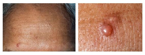 Two-panel photograph showing the forehead of an individual with three small, flesh-colored bumps on the surface of the skin (left panel) and a close-up of a single bump on the skin with hair surrounding it (right panel).