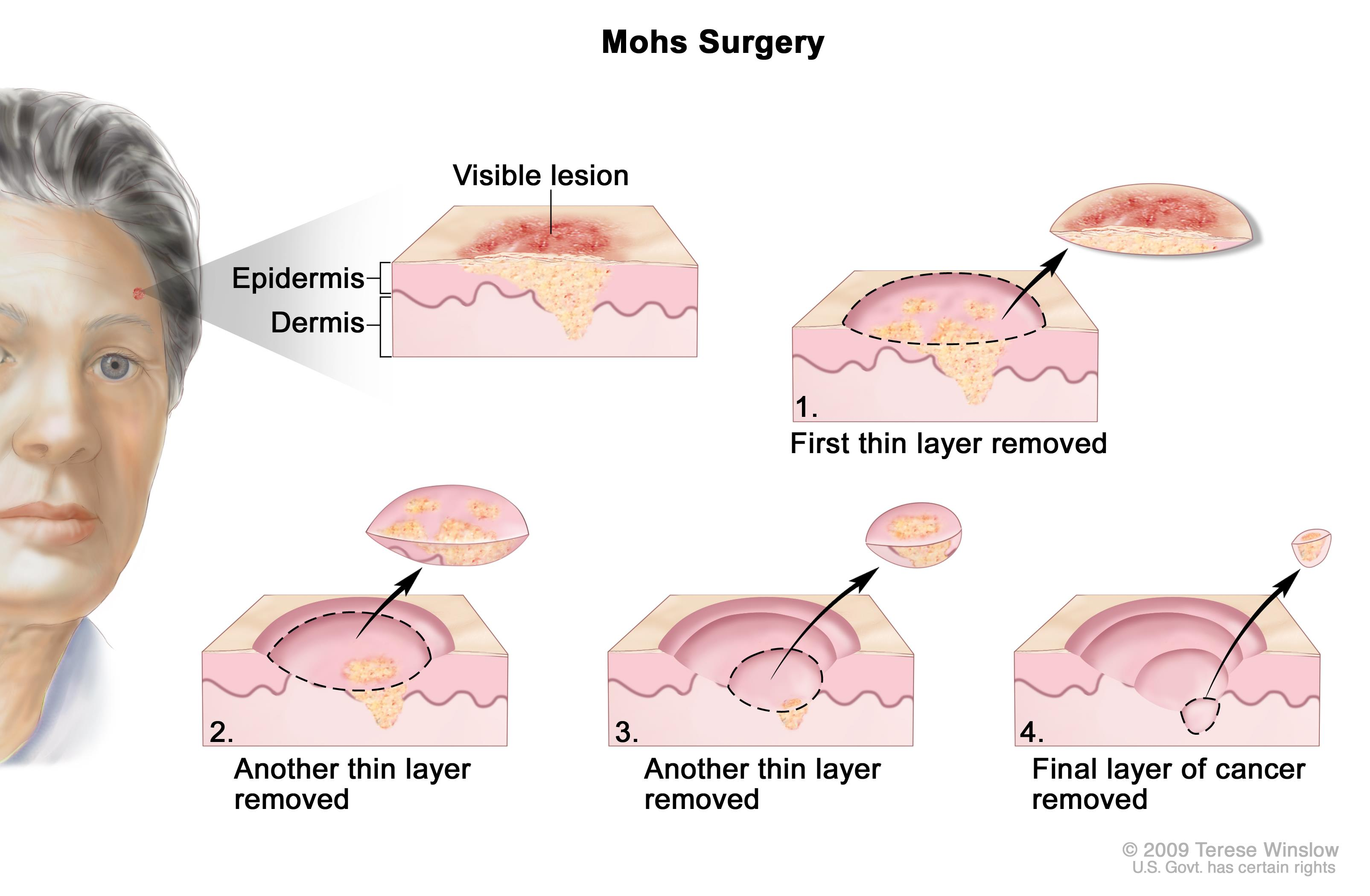 Which Surgical Procedure Uses Cold Cdr