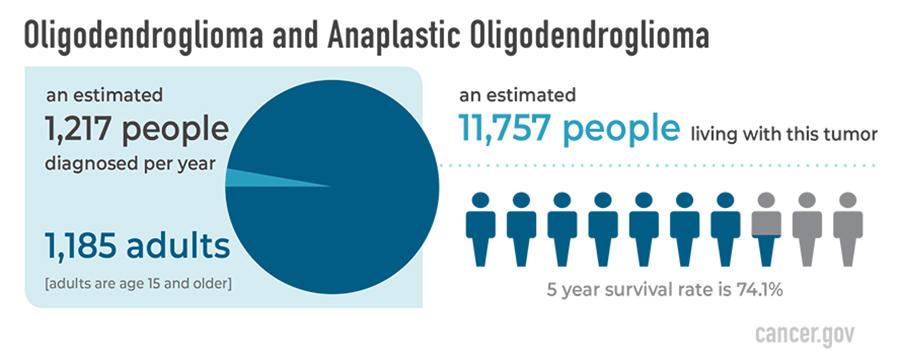 Oligodendroglioma - National Cancer Institute