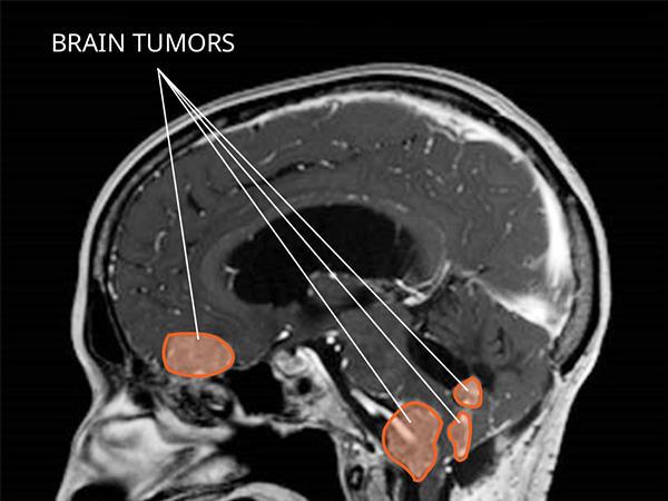 tumor papiloma de plexos coroideos
