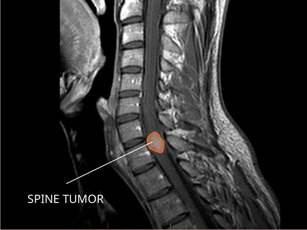 Ependymoma Diagnosis and Treatment - National Cancer Institute