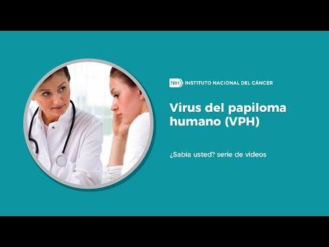 el virus del papiloma es cancer)
