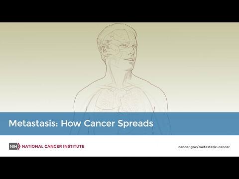 Metastatic Cancer - National Cancer Institute