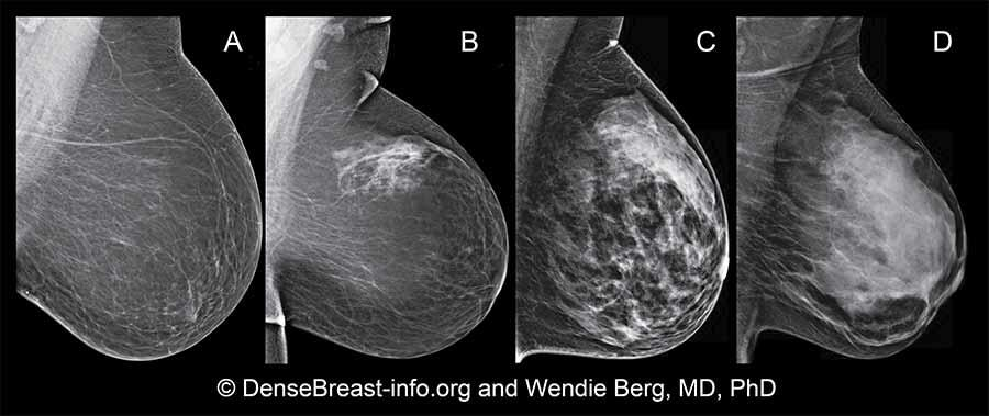 Dense Breasts: Answers to Commonly Asked Questions