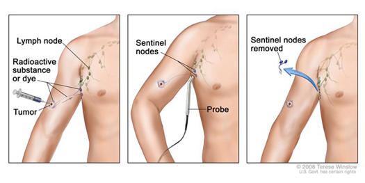 Department Of Surgery Sentinel Lymph Node Biopsy