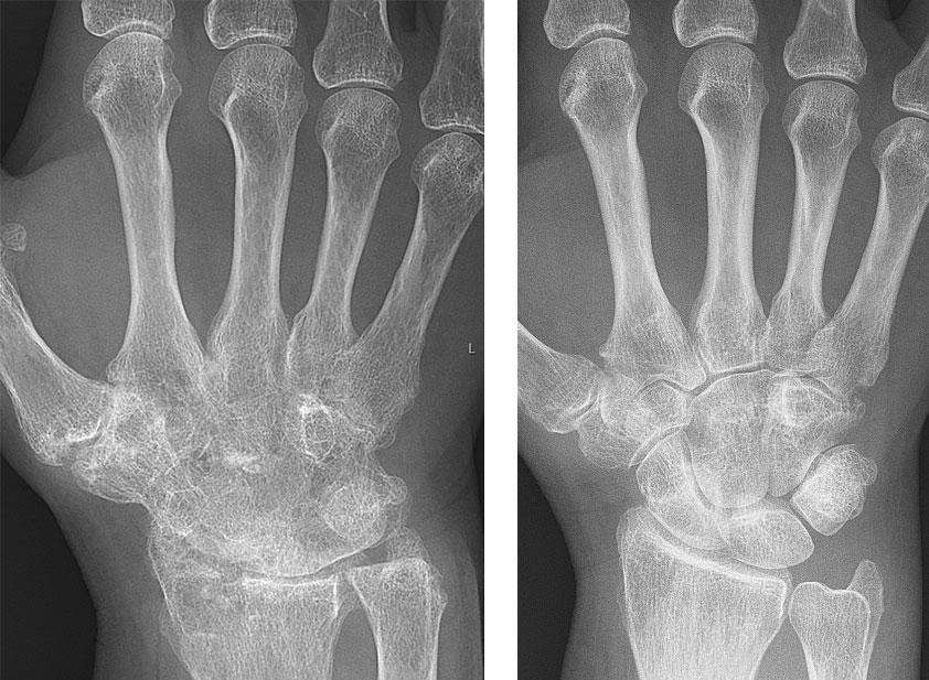 Before and after hand x-rays from a woman with rheumatoid arthritis.