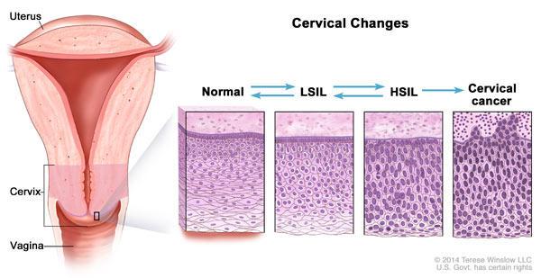 hpv causes abnormal cells medicamente pentru viermi pentru prevenire
