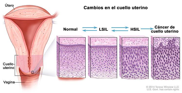 Anormales celulas que epiteliales las son