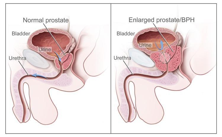 tumore prostata caused