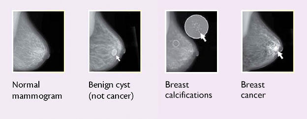 Breast Changes And Conditions National Cancer Institute