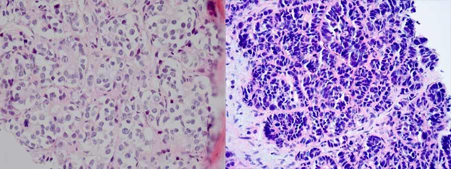 Neuroendocrine cancer of prostate, Generalitati despre prostata si afectiunile ei