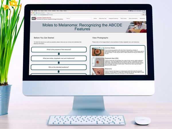 Tool to Distinguish Moles from Melanoma - National Cancer