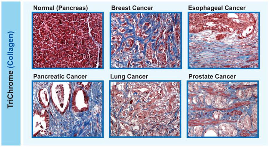Transplant Drug May Improve Immunotherapy for Breast Cancer
