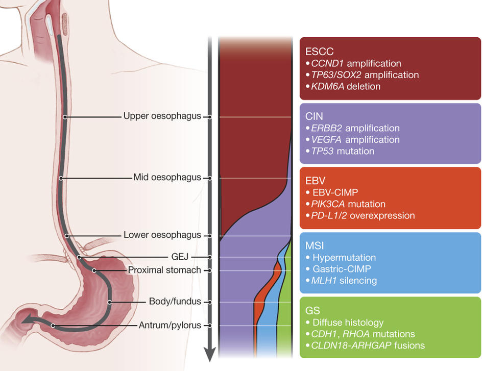 esophageal cancer genetic link
