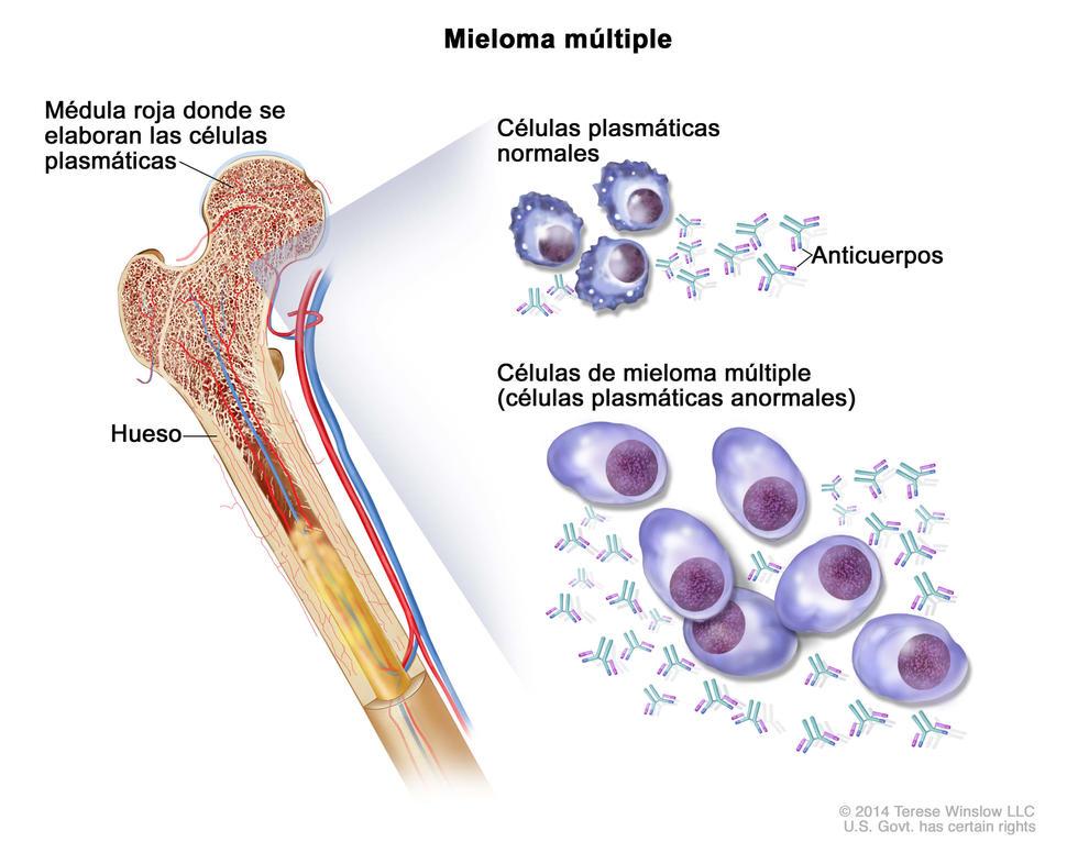 el cáncer de próstata puede conducir a mieloma