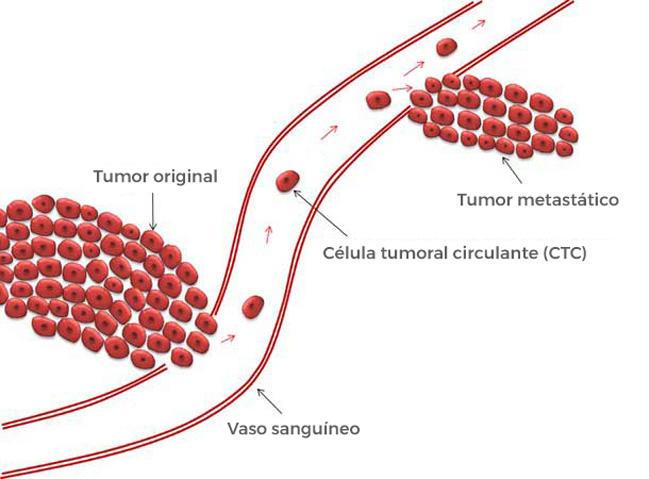 papilloma planoepitheliale leczenie colon cancer benign polyps