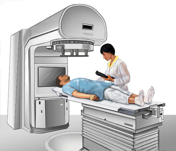 radioterapia con neutrones para el cáncer de próstata