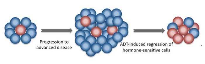 cancer de prostata hormono sensible saprofite și paraziți