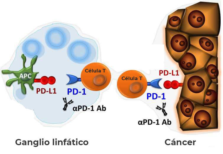 inmunoterapia para el cancer de prostata