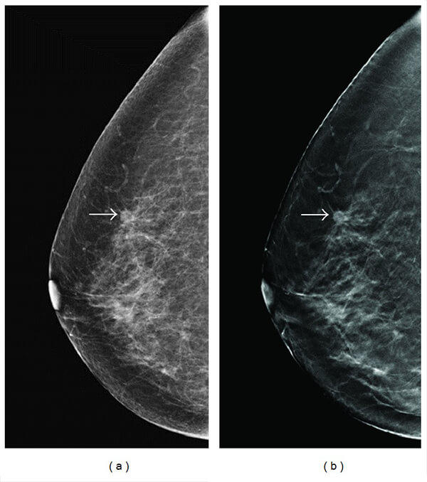 TMIST Trial Comparing Breast Cancer Screening Approaches