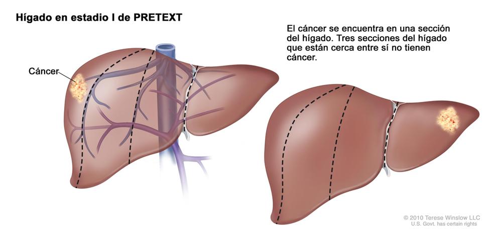 quimioterapia para cáncer higado