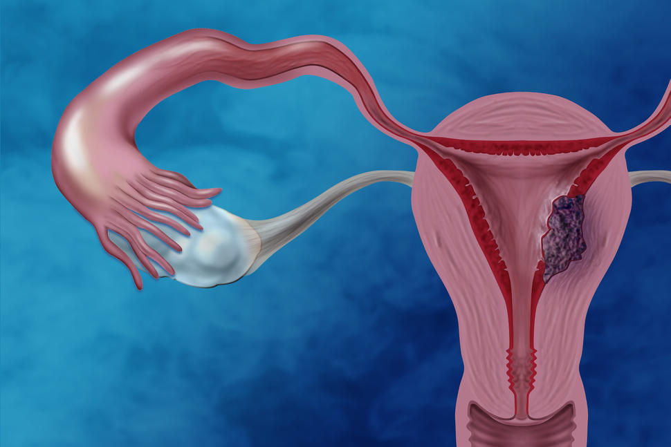 Illustration of the female reproductive system showing cancer cells in the endometrium.