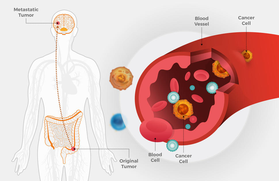 Metastatic Colorectal Cancer May Spread Early National Cancer Institute