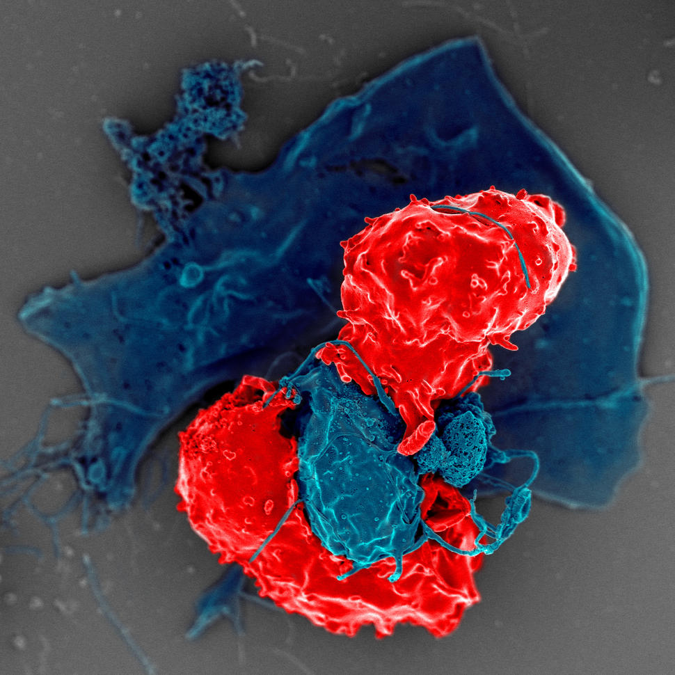 Scanning electron microscope image of T cells interacting with antigen-presenting cells.