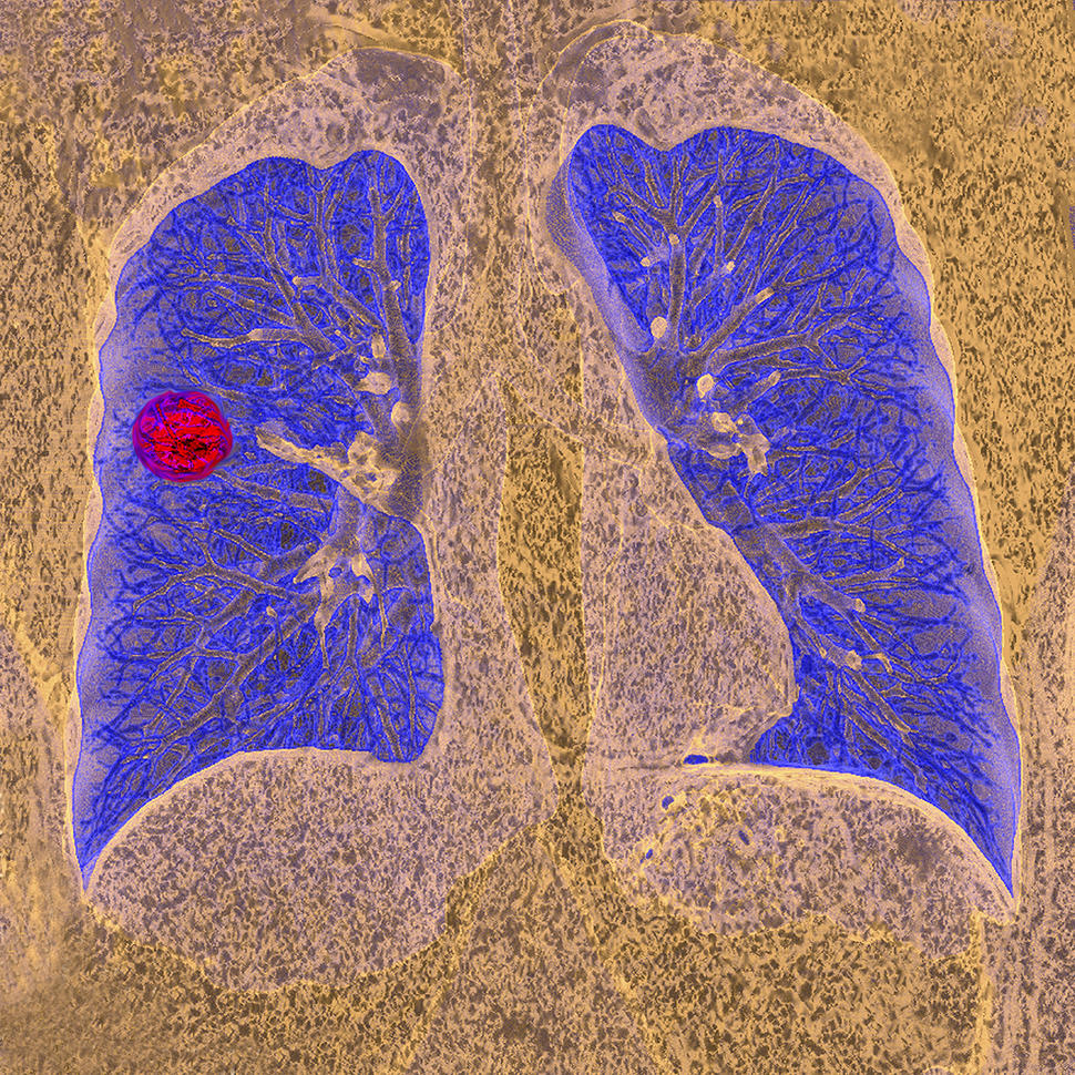 A CT scan of a person with lung cancer.