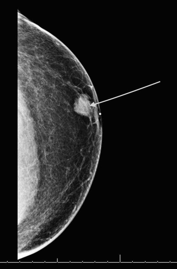 Men With Breast Cancer Have Higher Mortality Than Women National