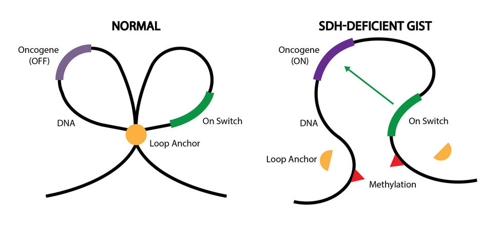 A graphic explaining epigenetic changes in normal cells and SDH-deficient GIST.