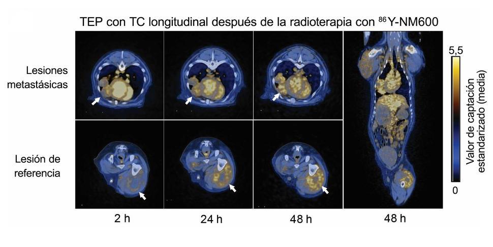 la radioterapia de próstata reduce el sistema inmunitarion