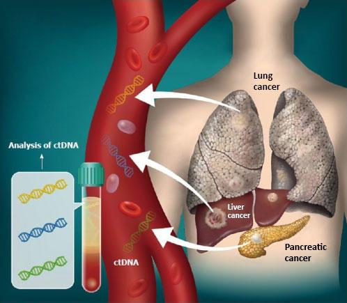 Pancreatic Cancer Liquid Biopsy