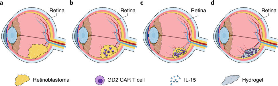Treatment of retinoblastoma with GD2 CAR T cells