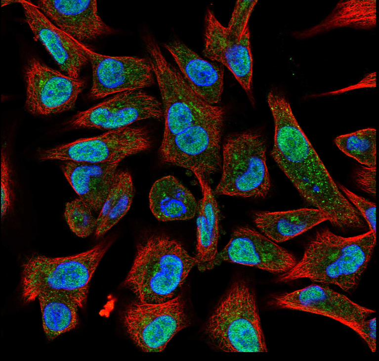 Image of cells with POLQ stained green.