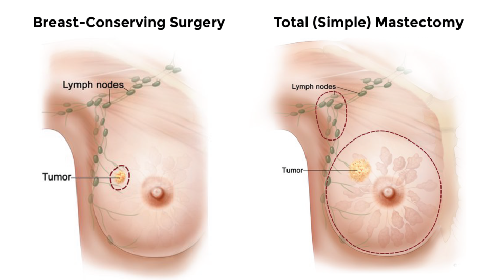 Side by side illustrations of breast-conserving surgery and a simple mastectomy.