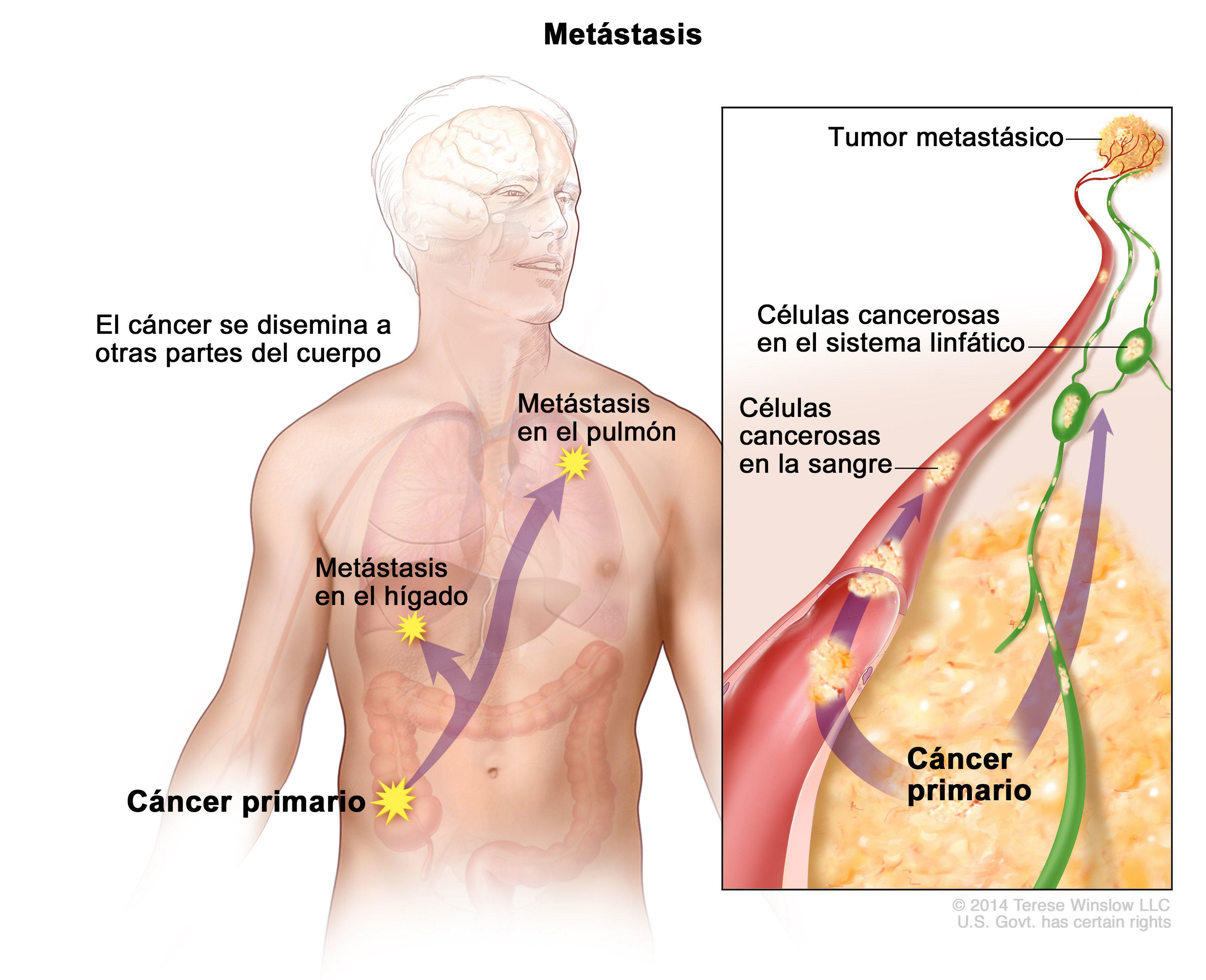 cancer higado metastasis supervivencia