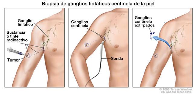 positivitis prostática ganglios linfáticos