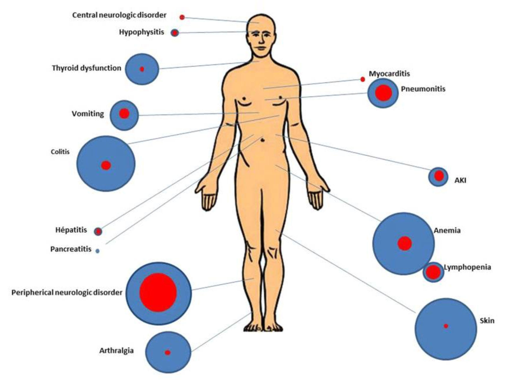 Investigating The Side Effects Of Cancer Immunotherapy National Cancer Institute